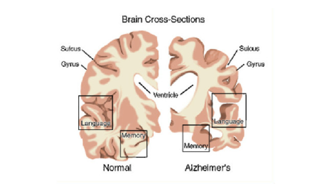 The Genetics underlying late-onset Alzheimer's Disease